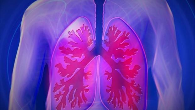 ep pulmones